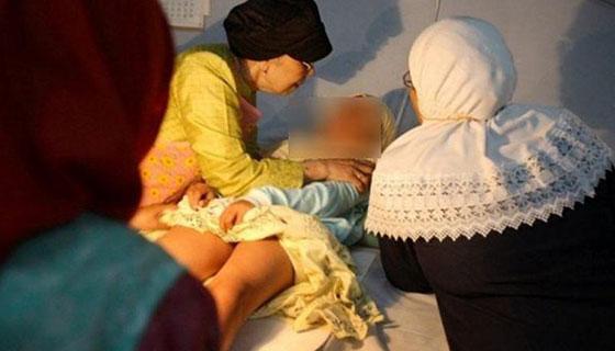 Female-circumcision-image